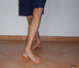 láb és a gyógytorna